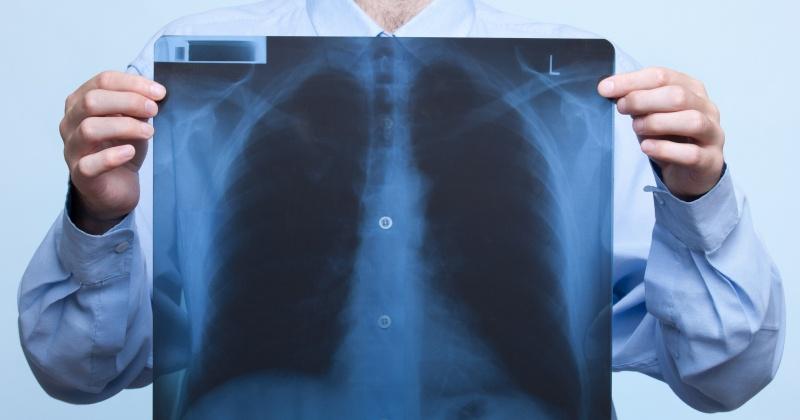 Почти восемьсот человек болеют ХОБЛ  в Магадане