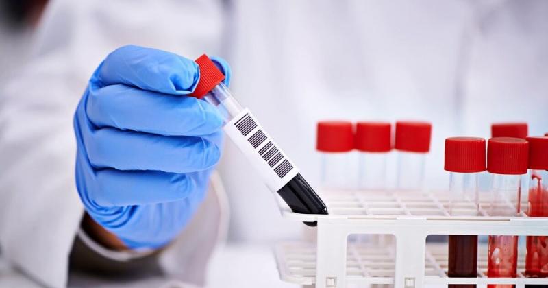 За сутки в Магадане и регионе зарегистрировано 27 новых  случаев заражения коронавирусом