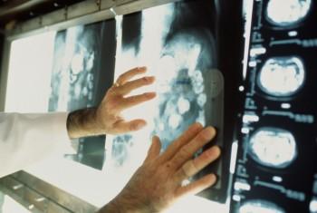 Гарафитдин Зайнутдинов: Региону необходим онкологический диспансер