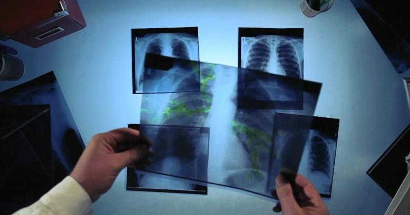 Показатель заболеваемости населения впервые выявленным активным туберкулезом в Магадане снизился на 14 % по сравнению с 2017 годом